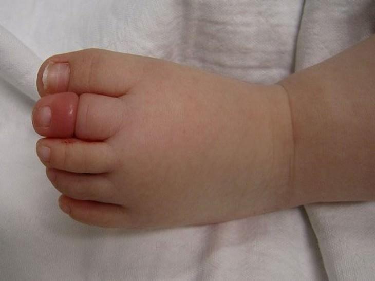 בוהן נפוחה של תינוק בגלל שערה שנכרכה סביבה