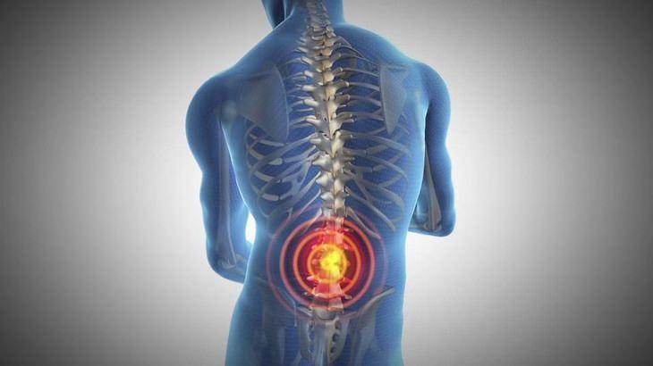תרגילים לטיפול בכאבי גב תחתון: איור כאבים בגב התחתון
