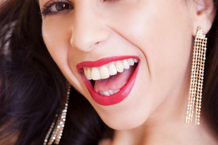 טיפים להסרת אבנית מהשיניים: אישה מחייכת חיוך רחב