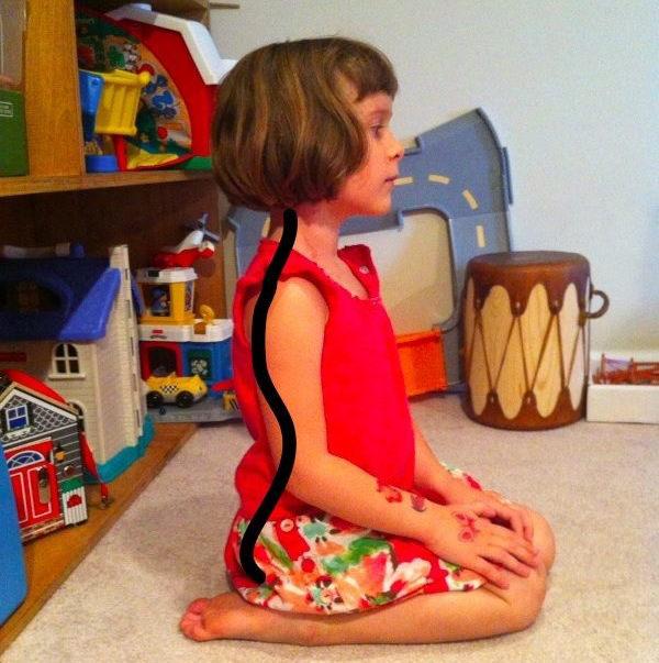 תנוחת הישיבה הנפוצה והמסוכנת בקרב ילדים - ילדה יושבת בתנוחה נכונה
