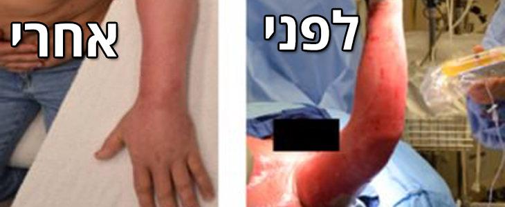 תגליות מדעיות של שנת 2017: תמונת לפני ואחרי טיפול בתרסיס עור