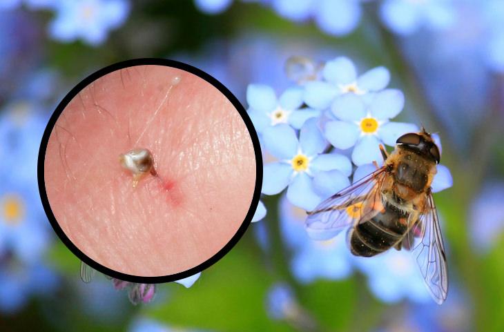 איך לזהות עקיצות של חרקים: דבורה וסימן עקיצתה