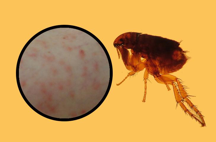 איך לזהות עקיצות של חרקים: פרעוש וסימן עקיצתו