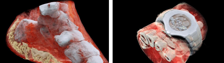 תגליות מדעיות: צילום רנטגן בצבע מלא