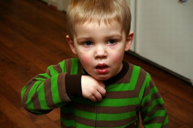 טיפול בשיעול אצל תינוקות: ילד משתעל