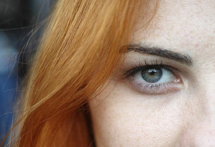 טיפול בקמטי עור הפנים: אישה עם עיניים ירוקות ועור פנים מוצק
