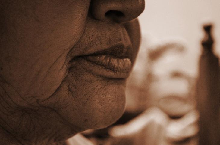 מידע חשוב על קולגן: אישה עם קמטים