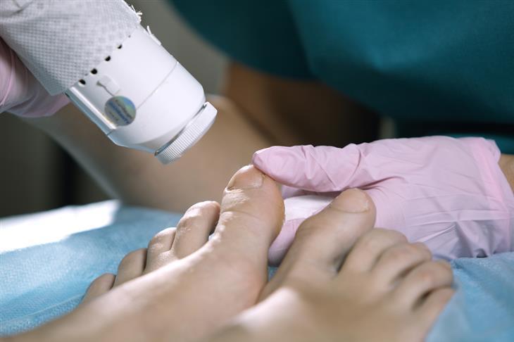 טיפול בציפורניים חודרניות: טיפול בלייזר רפואי