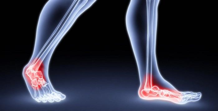 טיפול בכאבים: מפרקים מודלקים בכף הרגל