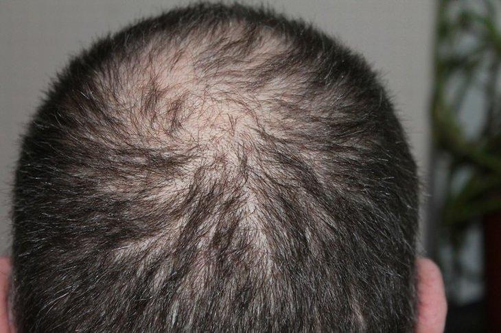 בעיות בזרימת הדם: ראש של אדם מקריח