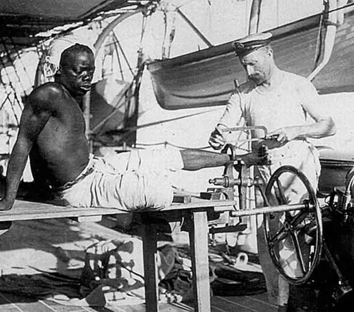 תמונות היסטוריות: מלח בריטי מנסר את האזיק מרגלו של עבד אפריקני שיצא לחופשי באזור חופי קונגו - אנגולה בשנת 1907