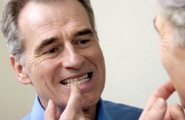 בדיקות בריאות: איש מצביע על השיניים שלו