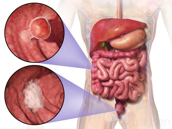 קולונוסקופיה וירטואלית לאיתור סרטן המעי הגס: פוליפים על המעי הגס