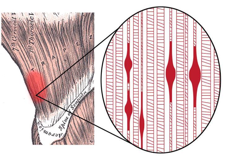 שחרור נקודות טריגר: איור של סיבי שרירים קשורים בנקודת טריגר