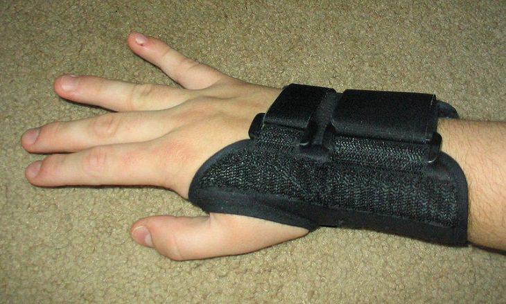 תסמונת התעלה הקרפלית: יד עם סד להגנה על פרק כף היד