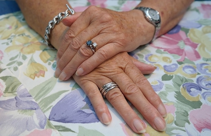 איך להחזיר לידיים מראה צעיר: ידיים של אישה מבוגרת