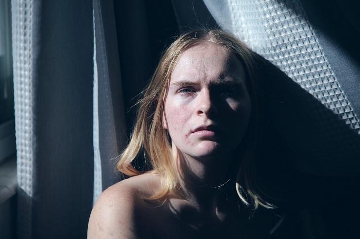 סימנים לכך שצריך להפסיק לצרוך חלב: אישה הסובלת מפצעונים על פניה