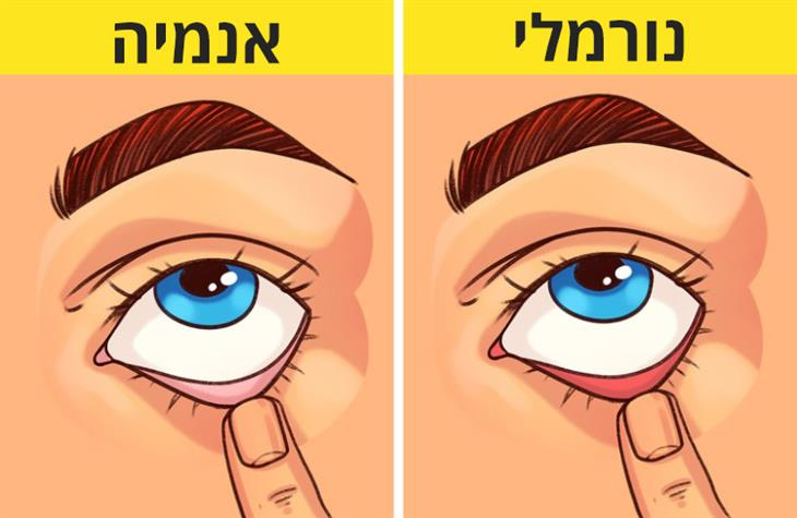 בדיקות ביתיות למצבים רפואיים: עין שתחתיה בשר אדום במצב נורמלי ובשר ורוד במצב אנמיה