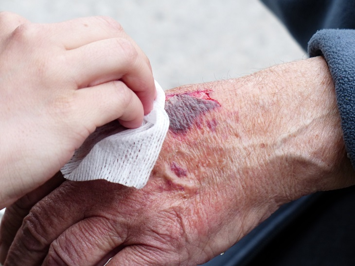 סימנים להופעת לוקמיה: יד מדממת