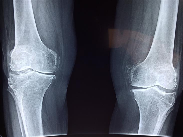 איך לטפל באוסטאופניה: צילום של עצמות