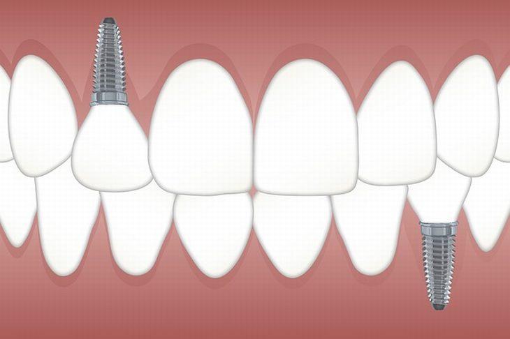 השתלת שיניים ביום אחד: איור של שתלי שיניים