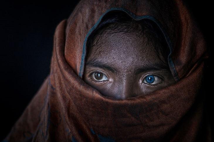 נשים מרחבי העולם: בחורה ממיעוט אתני בויuיטנאם עם של על הפנים, שעין אחת שלה חומה והשנייה כחולה