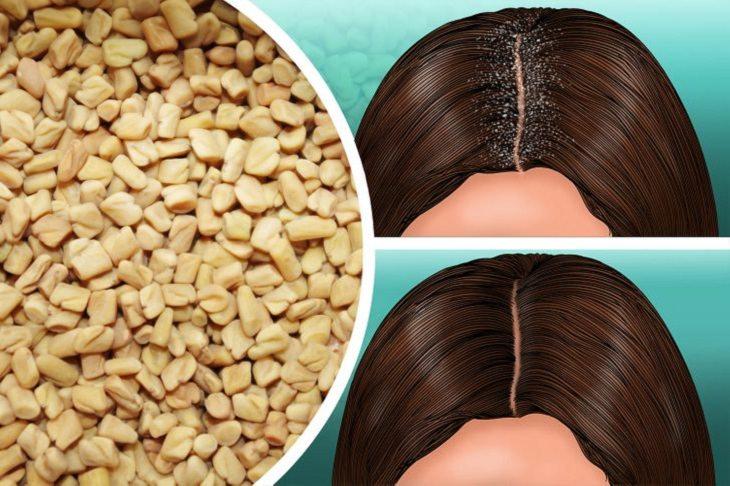 שיטות טבעיות לטיפול בקשקשת: גרגירי חיבה לצד איורים של אישה עם קשקשים ובלי קשקשים
