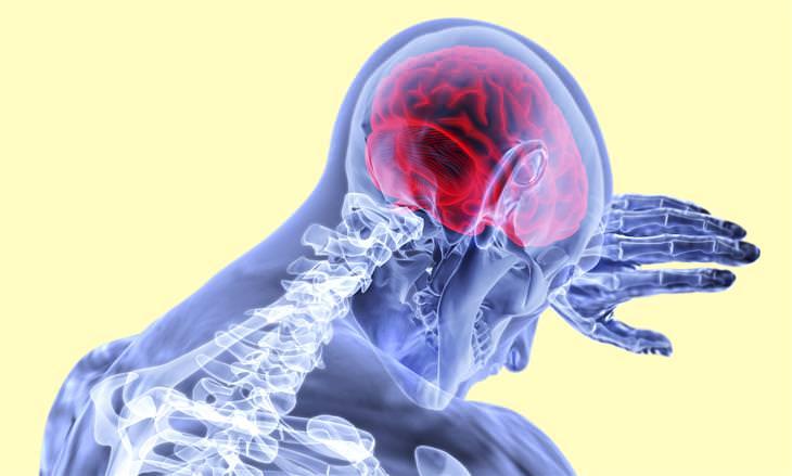 סיבות לערפול מוחי: איור של אדם בצילום רנטגן משעין את ראשו על כף ידו ומוחו אדום