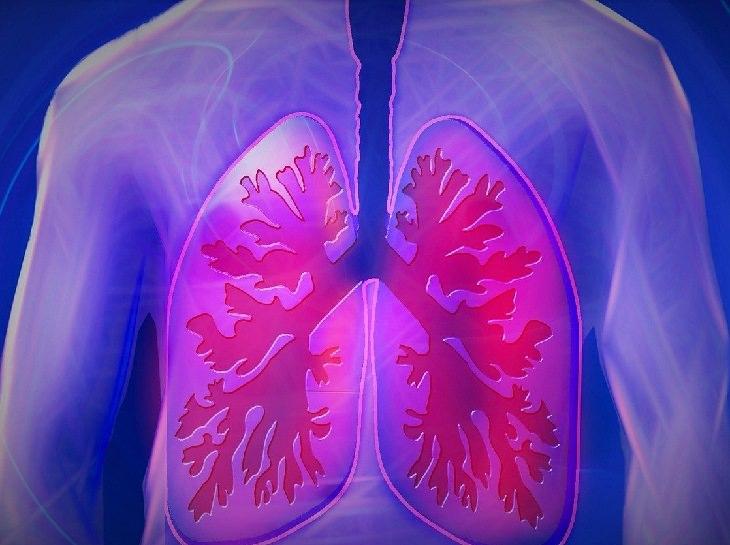 חסמת הריאה: איור של ריאות