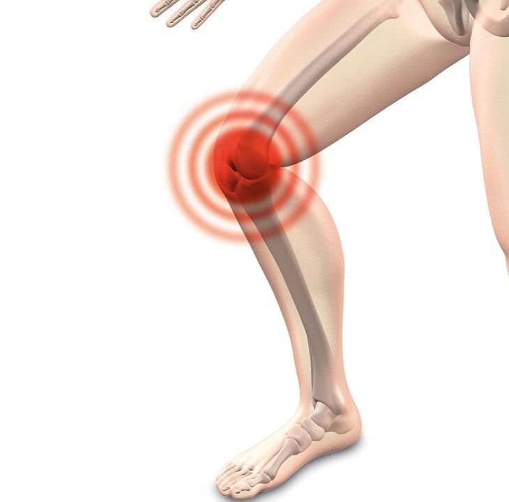 דלקת מפרקים ניוונית: איור של מפרק הברך