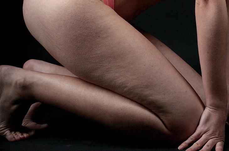 דברים שכדאי לדעת על צלוליט: רגליים של בחורה עם צלוליט