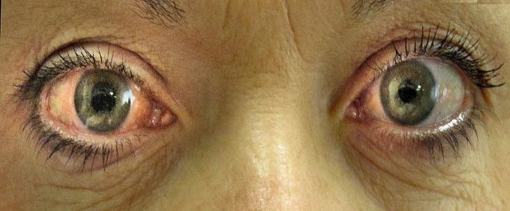 גורמים ופתרונות לכבדות ראייה: עיניים של אישה עם גלאוקומה