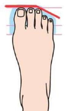 מה כף הרגל מספרת על האישיות: כף רגל רומית