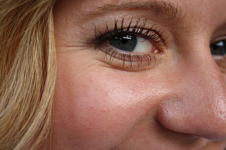 גורמים להופעת קמטים בעור: עיני אישה ומסביבן קמטים קטנים