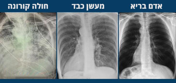 ההבדל בין ריאות של אדם בריא, מעשן וחולה קורונה: תמונת המחשה