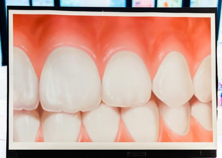 יתרונות ורבנה רפואית: צילום של שיניים וחניכיים