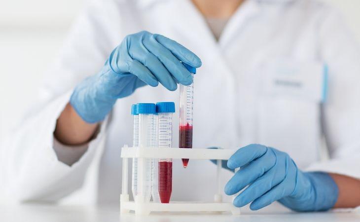בדיקת דם חדשה לזיהוי סרטן: מבחנות עם דם