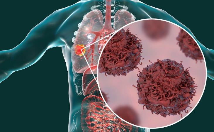 בדיקת דם חדשה לזיהוי סרטן: סרטן ריאות