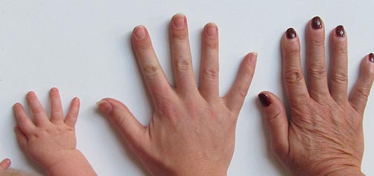 גורמים לנפיחות בידיים ודרכי טיפול בהם: יד מבוגרת, יד צעירה ויד של תינוק