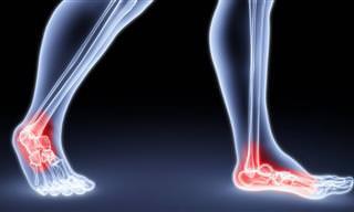 פיזיותרפיסטית מסבירה: ככה ניתן לטפל בכאבים בקרסול