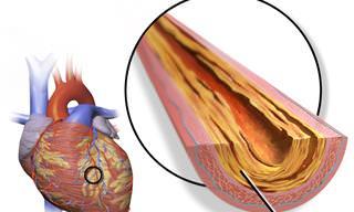 סרטון המסביר מהו התקף לב וכיצד מזהים, מטפלים ומונעים אותו