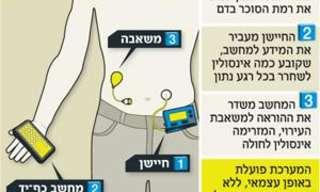 פיתוח ישראלי חדש – לבלב מלאכותי