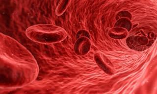 מה הם קרישי דם ו-10 התסמינים שעלולים להעיד עליהם