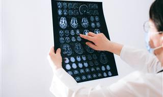 נפלאות הפעילות האירובית ותרומתה לבריאות המוח