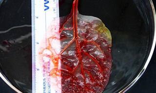 חוקרים הצליחו לגדל לב מעלה תרד