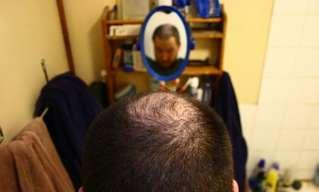 18 גורמים נפוצים לנשירת שיער