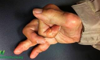 """האם כורכום מהווה טיפול יעיל בדלקת מפרקים? לד""""ר יש את התשובה..."""