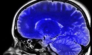 כמה מיתוסים על תפקוד המוח
