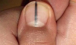 מלנומה של הציפורן - מחלה קטלנית שיש להיזהר ממנה