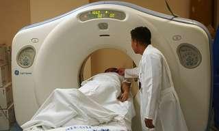 הקשר בין צילומי הרנטגן לסרטן בלוטת התריס